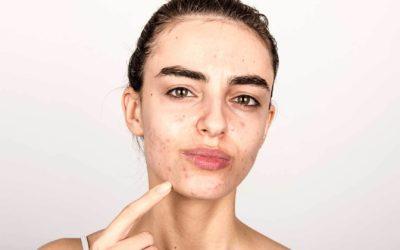 L'acne nella sindrome dell'ovaio policistico: quali sono le cure alternative?