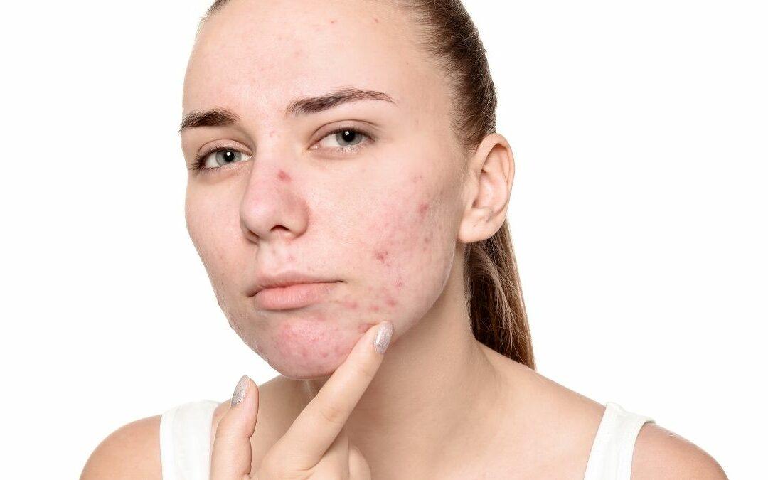 Come trattare le pelli acneiche in estate